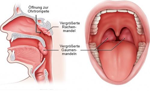 Grafik: links Querschnitt Kopf seitlich, rechts Blick in den Mund mit vergrößerten Mandeln