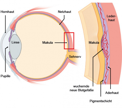 Grafik: Aufbau des Auges und wuchernde Blutgefäße - wie im Text beschrieben