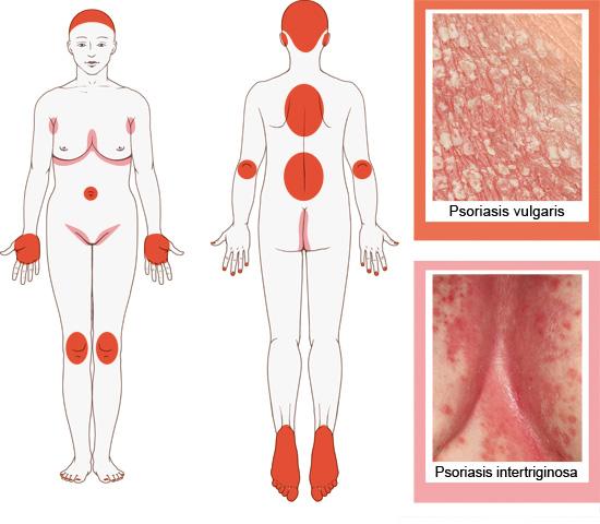 Grafik: Typische von Psoriasis vulgaris (rot) oder intertriginosa (rosa) betroffene Hautstellen - wie im Text beschrieben