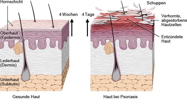 Grafik: Vermehrung und Abstoßung der Keratinozyten bei Psoriasis - wie im Text beschrieben