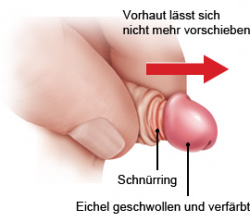 Grafik: Die Vorhaut lässt sich nicht mehr über die Eichel zurückschieben und schnürt die Blutzufuhr ab - wie im Text beschrieben