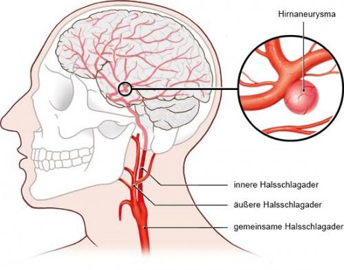 Grafik: Ein Hirnaneurysma sitzt oft mitten im Gehirn