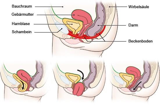 rafik. Oben: normale Lage der Organe im Beckenraum; unten: links Blasensenkung, Mitte Gebärmuttervorfall, rechts Mastdarmsenkung