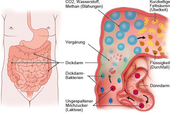 Grafik: Verdauung bei Laktoseintoleranz - wie im Text beschrieben