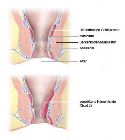 Hämorrhoiden-Gewebe, Ansicht im Längsschnitt: normal und vergrößert - wie im Text beschrieben