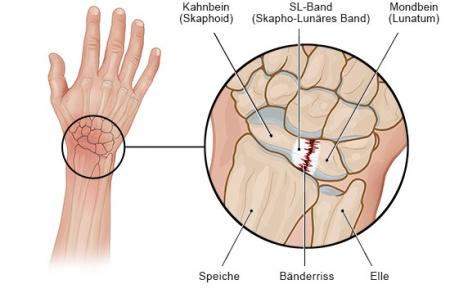 Grafik: Bänderriss im Handgelenk