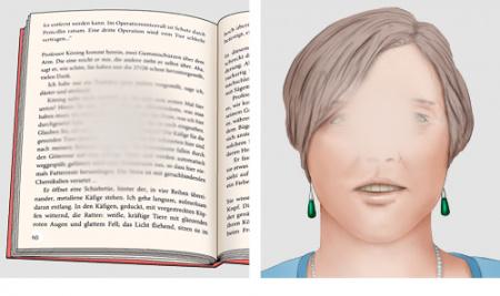Grafik: Typischer Sehverlust bei AMD; Dinge, auf die man gezielt blickt, verschwimmen, links: Buchseite, rechts: Gesicht
