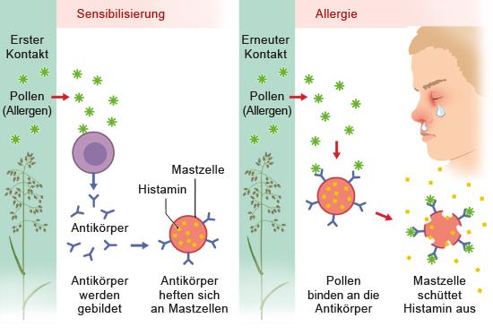 Grafik: Entwicklung einer Allergie - wie im Text beschrieben
