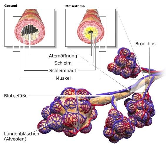 Grafik: Aufbau der Lungen-Atemwege; gesunde und durch Asthma verengte Bronchien - wie im Text beschrieben