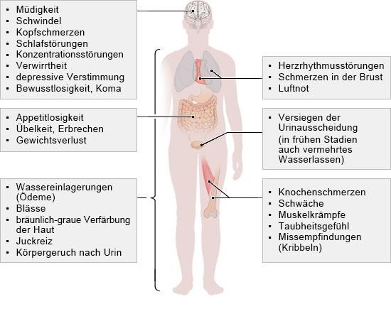 Grafik: Diese Symptome können einzeln oder in Kombination auftreten