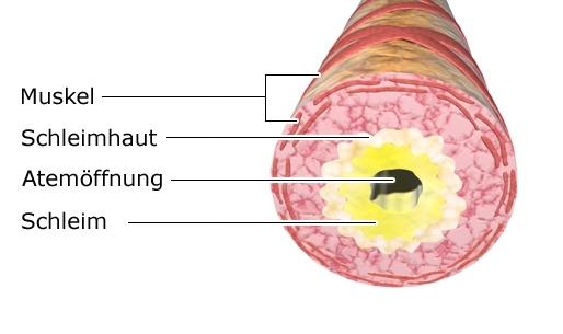 Grafik: Verengter Atemweg (Bronchus)