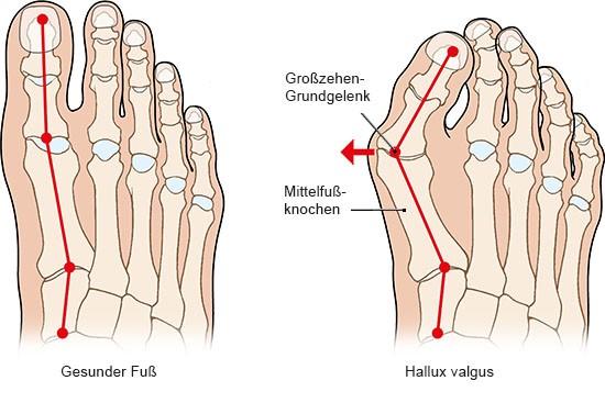 Grafik: Gesunder Fuß und Hallux valgus - wie im Text beschrieben
