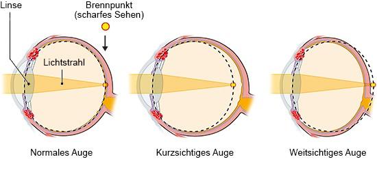 Grafik: Brechungsfehler bei Kurz- und Weitsichtigkeit - wie im Text beschrieben