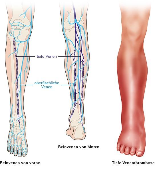 Grafik: Gesundes Bein und Unterschenkel mit tiefer Venenthrombose