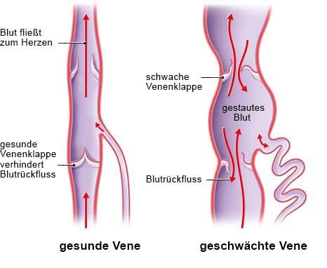 Grafik: Blutrückfluss bei einer gesunden und geschwächten Vene