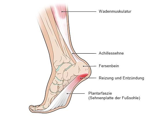 Fuß mit Plantarfasziitis