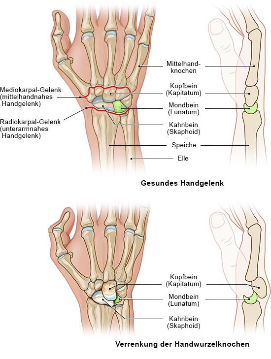 Grafik: Gesundes Handgelenk und Verrenkung der Handwurzelknochen