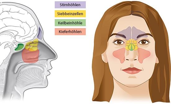 Grafik: Lage der Nasennebenhöhlen - wie im Text beschrieben