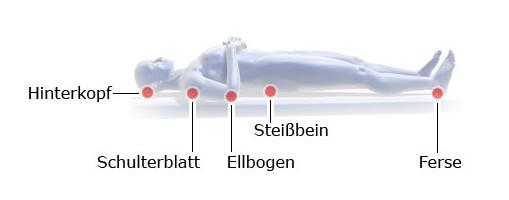 Grafik: Druckgeschwüre: typische Entstehungsorte beim Liegen, seitlichGrafik: Druckgeschwüre: typische Entstehungsorte beim Liegen, Rückenlage