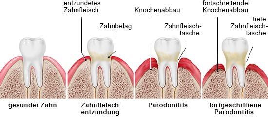 Grafik: gesunder Zahn, Zahnfleischentzündung und Parodontitis