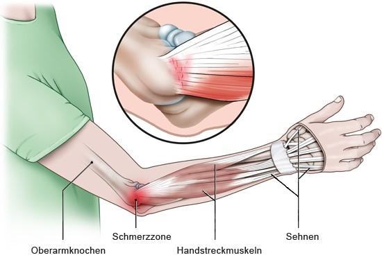 Grafik: Schmerzregion bei Tennisarm - wie im Text beschrieben