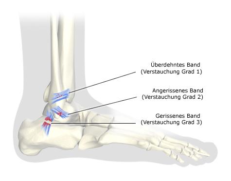 Grafik: Fußknochen (Ansicht von der Außenseite) mit Verstauchungen 1., 2. und 3. Grades - wie im Text beschrieben