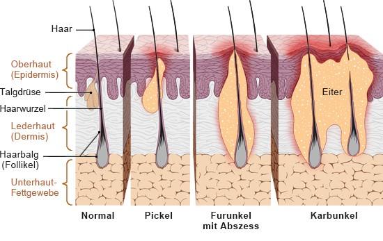 Grafik: Mögliche Infektionen am Haarbalg - wie im Text beschrieben