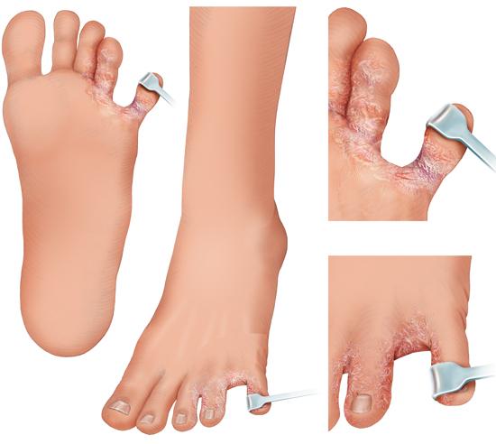Grafik: Fußpilz: typische Rötungen und Risse in der Haut