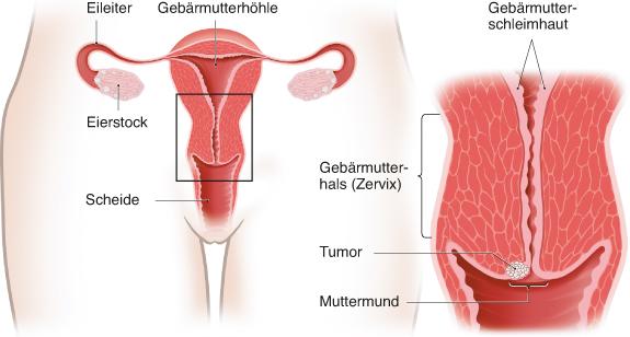 Grafik: Gebärmutterhals und Muttermund