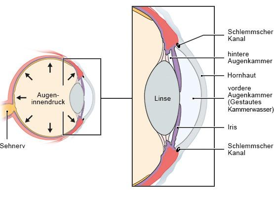 Grafik: Glaukom