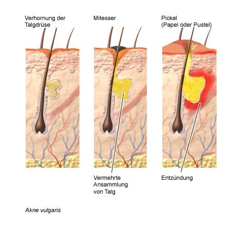 Entstehung eines Akne-Pickels, Erläuterung im Text