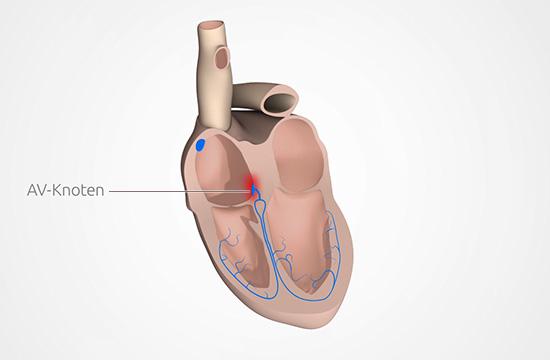 Grafik: Beim AV-Block ist die Reizweiterleitung am Herzen gestört