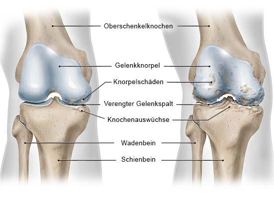 Grafik: Ansicht rechtes Knie von vorn ohne Kniescheibe; links mit einseitiger Arthrose (medial), rechts mit fortgeschrittener beidseitiger Arthrose (medial und lateral)