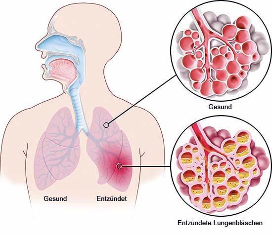 Grafik: Lungenentzündung im linken Lungenflügel