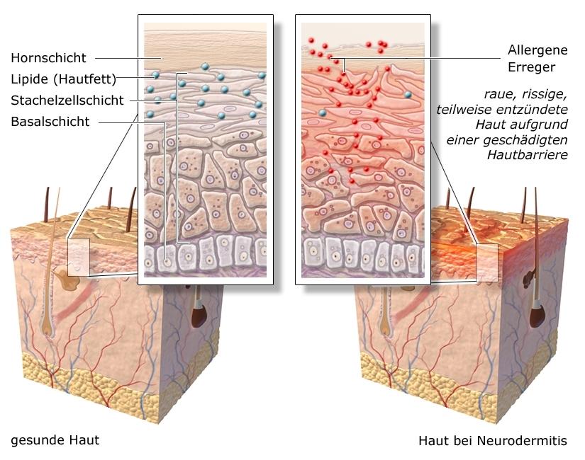 Grafik: Gesunde Haut und Haut mit Neurodermitis - wie im Text beschrieben