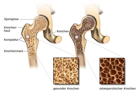 Grafik: links gesunder, rechts brüchiger Knochen bei starker Osteoporose - wie im Text beschrieben