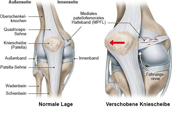 Grafik: normale Anatomie des Knies (links) und Patella-Luxation (rechts)