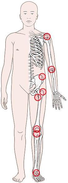 Grafik: Entzündete Schleimbeutel: typische Körperstellen