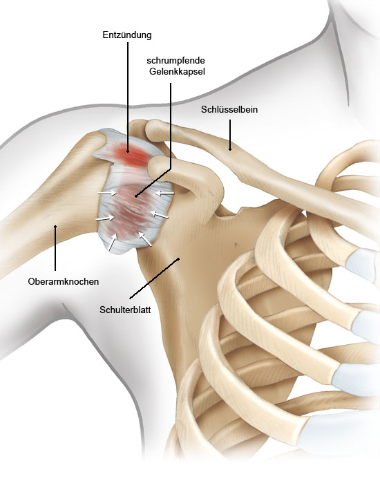 Grafik: Schultergelenk (außen) mit Entzündung in der Gelenkkapsel - wie im Text beschrieben