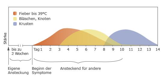 Windpocken: Verlauf und Ansteckungszeiten